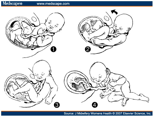 Nuchal Cords The Perfect Scapegoat Midwifethinking