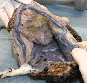 2291da7aacb In Defence of the Amniotic Sac